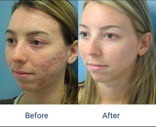 Side+Effects+Of+Laser+Treatment+For+Acne