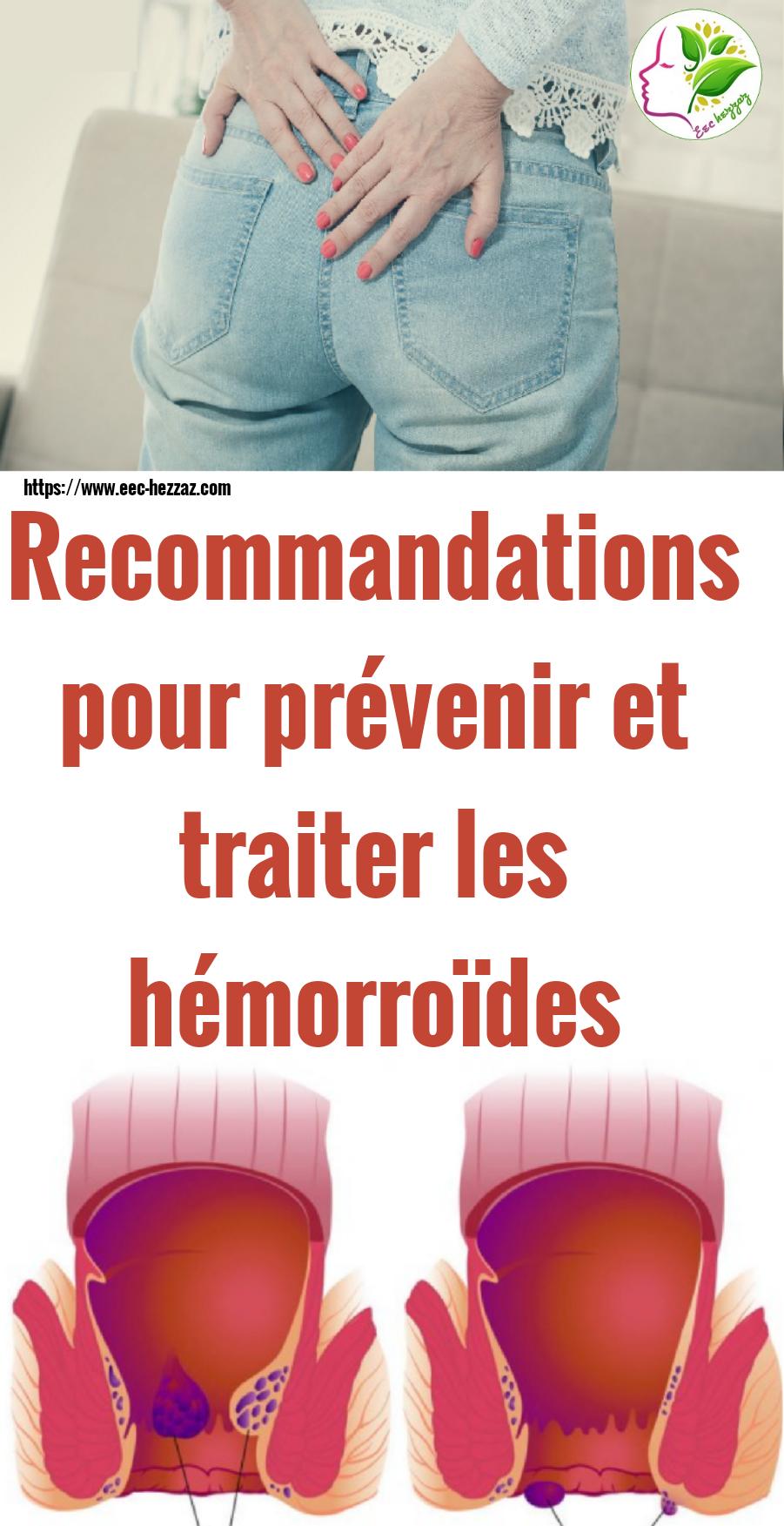 Recommandations pour prévenir et traiter les hémorroïdes