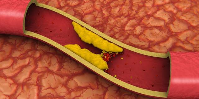 Un secreto para bajar el colesterol alto