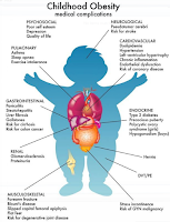4 Causes of Obesity in Children