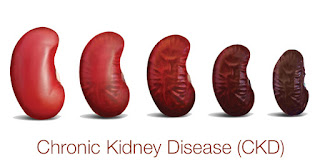 stages of kidney failure