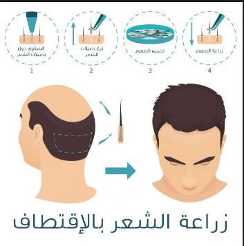 شرح مبسط لزرع الشعر بتقنية الاقتطاف