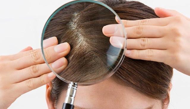 9 Cara Menghilangkan Kutu Rambut Dengan Cepat Dan Mudah