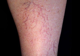 Presence of spider veins on the skin can be linked with hepatitis C infection picture