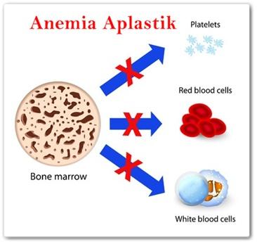 Cara Mengobati Anemia Aplastik Secara Alami Terbukti Ampuh