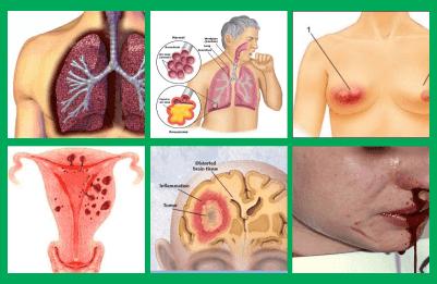 gambar kanker, gambar tumor, gambar kelenjar getah bening