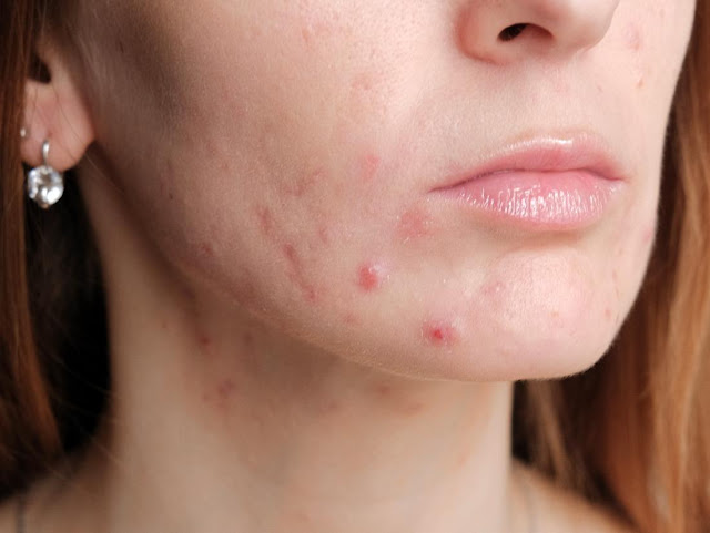 Pregnancy Acne, Natural Options for Treatment