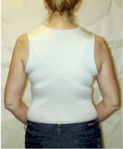 Bra Fat | Apa Itu Bra Fat Dan Bagaimana Cara Mengatasi Bra Fat