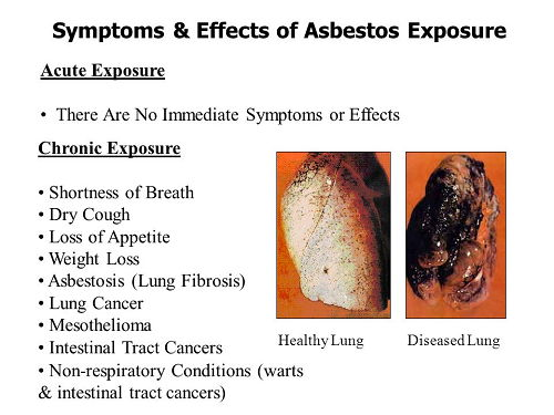 Asbestos Exposure Immediate Symptoms