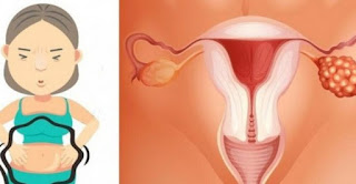 Symptoms Of Ovarian Cancer