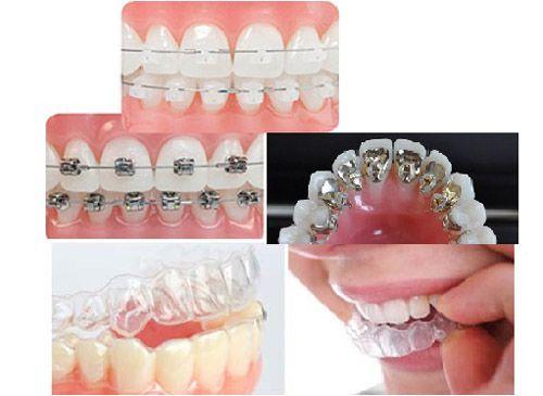 Image result for Nắn chỉnh răng mặt ngoài