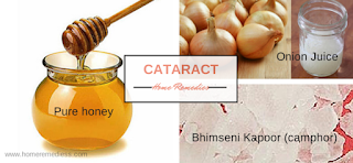 Dr. OZ Cataract Home Remedies