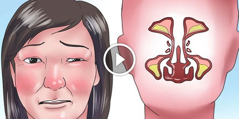 my nasal passages are swollen - 800×400