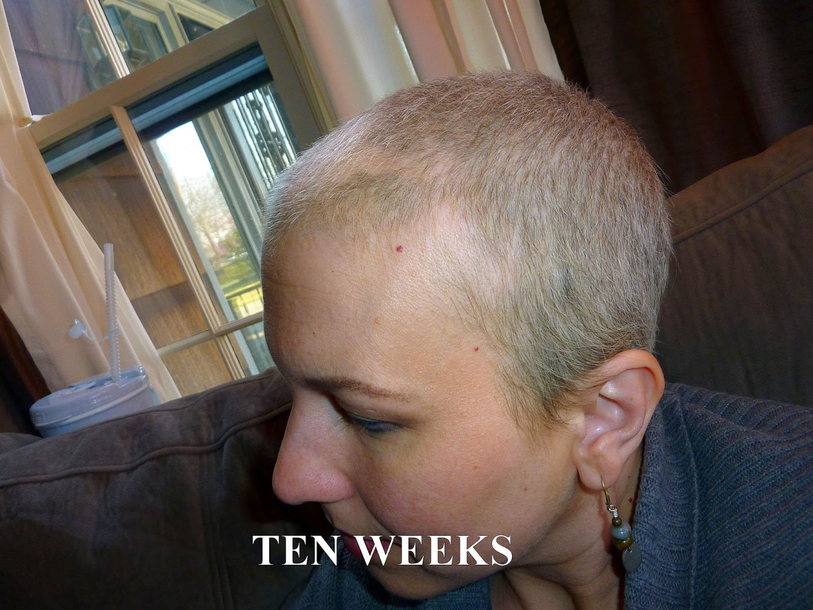 Anncredible Hair Growth Progression After Chemo Six
