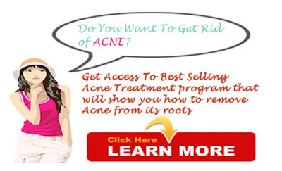 acne no more ebook download