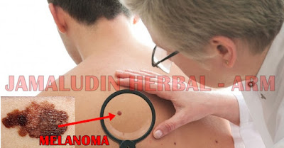 http://arumherbal30.blogspot.co.id/2018/02/obat-herbal-untuk-mengobati-melanoma.html