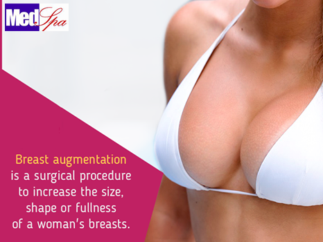 What is a breast implant?