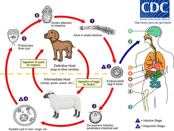 Echinococcosis or Hydatidosis disease
