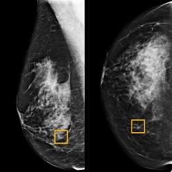 Câncer de Mama: inteligência artificial está aprendendo a ler mamografias