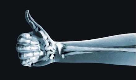 kesehatan tulang