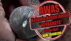 Ramuan Kencing Nanah Permanen