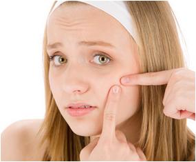 Cara Menghilangkan Jerawat Dengan Pasta Gigi | Cara Cantik-Ku