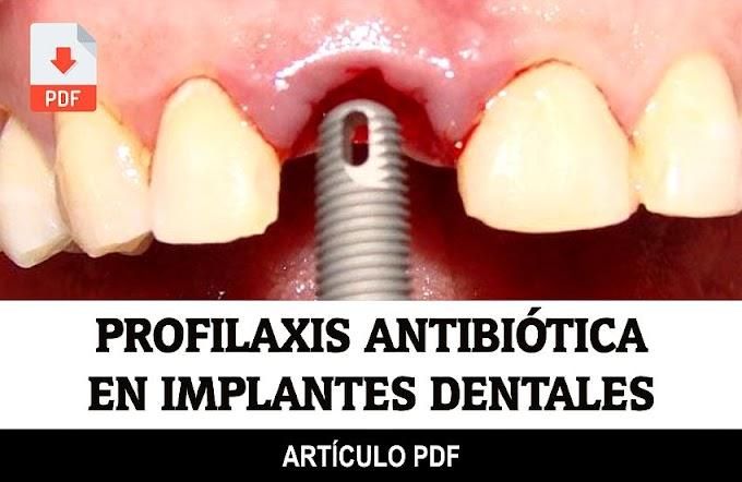 PDF: Uso de Profilaxis Antibiótica en Implantes Dentales