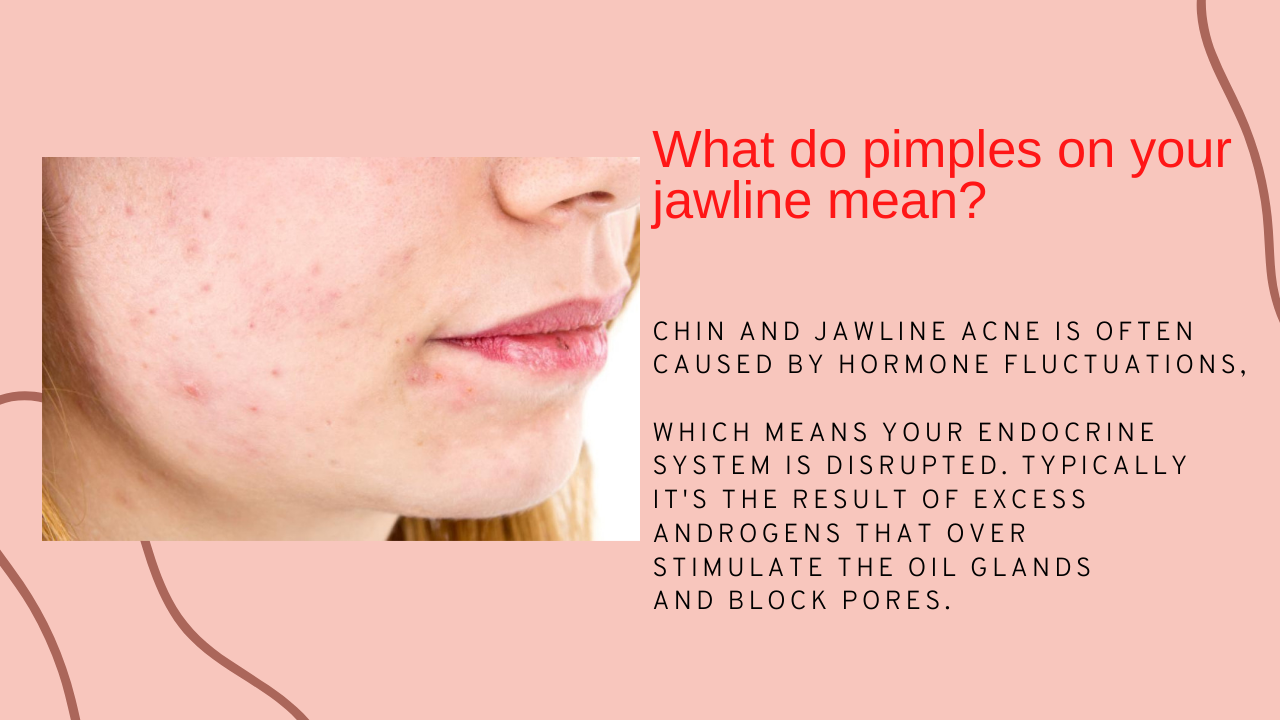 Itchy-acne-on-jawline-and-causes-of-itchy pimples-treatment-2020