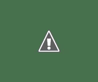 Dibujo con las características que tiene un niño con Sindrome de Noonan