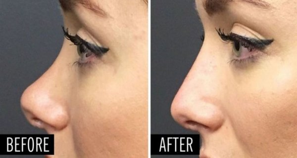 Improve The Look Of Your Nose Without Surgery! In Only 5 Minutes You Will Have A Completely New Nose That Looks Natural!