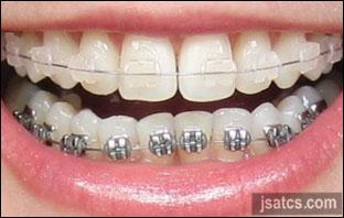 اسعار تقويم الاسنان الشفاف