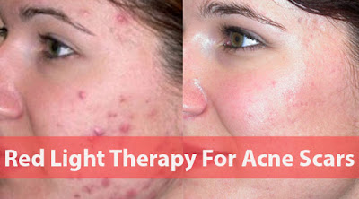 THE ENTIRE Guide to your Acne Scar tissue Treatment