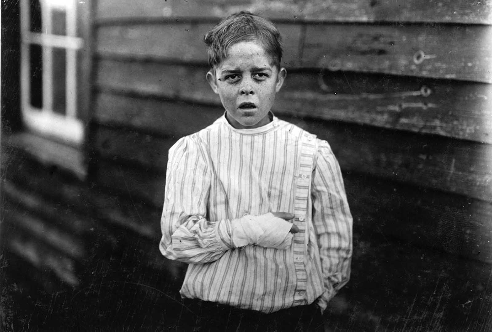 An injured young mill worker. Giles Edmund Newsom, photographed on October 23, 1912. Giles was injured while working in Sanders Spinning Mill in Bessemer City, North Carolina, on August 21st, 1912. A piece of machinery fell on his foot, mashing his toe. This caused him to fall onto a spinning machine and his hand went into unprotected gearing, crushing and tearing out two fingers. He told the investigating attorney that he was 11 years old when it happened. He and his younger brother worked in the mill several months before the accident. Their father, R.L. Newsom, tried to compromise with the company when he found the boy would receive the money and not the parents. Their mother tried to blame the boys for getting jobs on their own, but she let them work several months. Their aunt said
