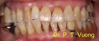 Dr. Phuoc Vuong Dentist - Phuoc T. Vuong, DMD, MS - Dr ...  Dr. Phuoc Vuong...