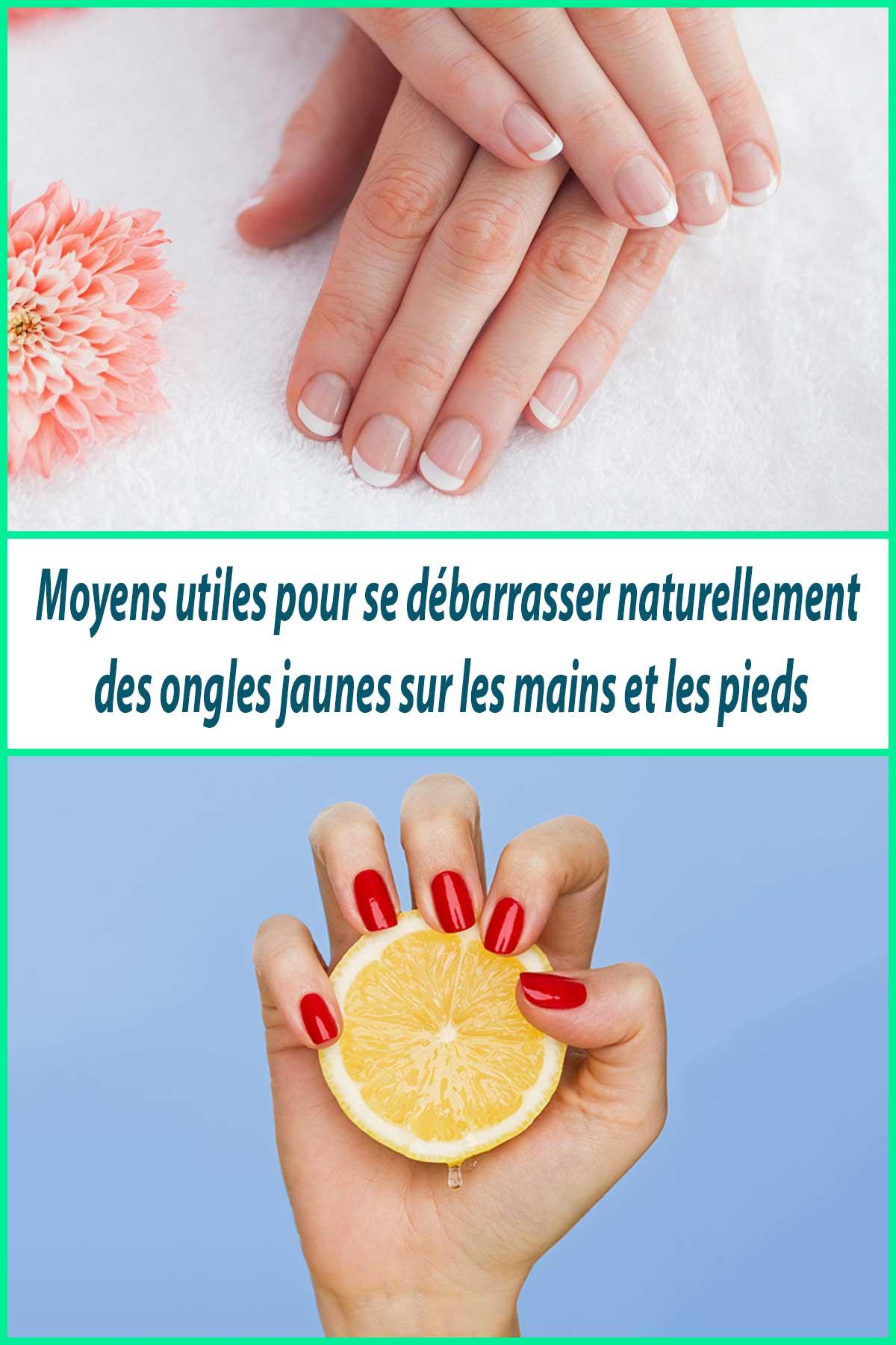 Moyens utiles pour se débarrasser naturellement des ongles jaunes sur les mains et les pieds