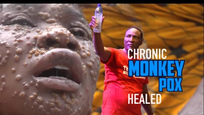 Woman Miraculously Healed Of Monkey Pox at Prophet Fufeyin's Church