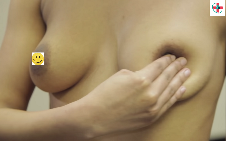 What You Need to Know About Breast Self-Exam