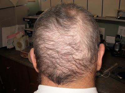 Hair Loss , How To Prevent Hair Loss, Hair Regrowth