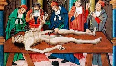 medicina medieval, medicina na idade media, tratamentos crueis da medicina na idade media, cirurgia na idade media