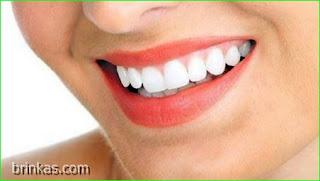 Cara Ampuh Memutihkan Gigi Dengan Bahan Alami