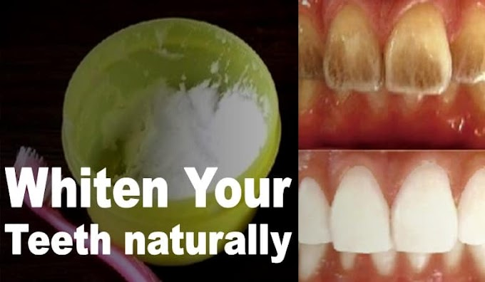 Whiten your yellow teeth in 2 minutes by removing deep stains