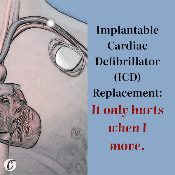 Implantable Cardiac Defibrillator (ICD) Replacement: It only hurts when I move.