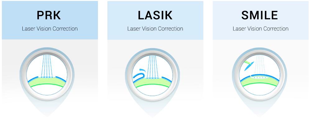 PRK vs LASIK