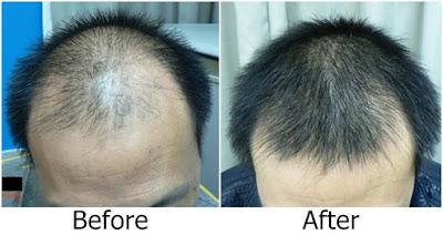 Hasil Pemakaian Puritans Pride Ultra Biotin 7500 mcg Untuk Menumbuhkan Rambut Botak