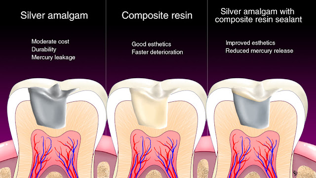 dental amalgam fillings