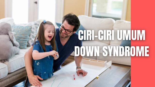 Ciri-Ciri Umum Down Syndrome Pada Manusia Down syndrome memiliki ciri yang khas yaitu, tonus otot rendah, wajah datar, hidung pesek, hipermobilitas sendi, ruas pada jari-jari memiliki space yang lebih luas, ukuran lidah cenderung lebih panjang dari ukuran normal. Anak down syndrome akan mengalami gangguan kognitif (ringan sampai sedang) dan akan mengalami keterlambatan perkembangan motorik seperti merangkak, duduk, berdiri dan berjalan.  Down syndrome mempunyai wajah yang khas, misalnya karena ada gangguan pada pertumbuhan tulang, maka tulang dahinya lebih datar, mata kiri dan mata kanan agak berjauhan, posisi daun telinganya lebih rendah. Secara fisik down syndrome memiliki tanda-tanda yang sama meskipun kadar dan kondisinya berbeda antara seorang individu down syndrome dengan individu down syndrome lainnya.  Menurut Blackman dalam Gunarhadi (2015), penyimpangan kromosom trisomi 21 menyebabkan ciri-ciri fisik perkembangan anak down syndrome seperti penyakit jantung bawaan, gangguan mental, tubuh kecil, kekuatan otot lemah, kelenturan yang tinggi pada persendian, posisi mata miring ke atas, adanya lipatan ekstra pada sudut mata, lubang mulut kecil sehingga lidah cenderung menekuk, tangan pendek tetapi lebar dengan lipatan tunggal pada telapak tangan.  Menurut Dyah Emmi (2013), menyebutkan karakteristik anak down syndrome menurut tingkatan adalah sebagai berikut:  Karakteristik anak down syndrome ringan Anak down syndrome ringan banyak yang lancar berbicara tetapi kurang pembendaharaan katanya, Mengalami kesukaran berpikir abstrak tetapi masih mampu mengikuti mengikuti kegiatan akademik dalam batas-batas tertentu. Pada umur 16 tahun baru mencapai umur kecerdasan yang sama dengan anak umur 12 tahun. Karakteristik anak down syndrome sedang Anak down syndrome sedang hampir tidak bisa mempelajari pelajaran-pelajaran akademik. Mereka umumnya dilatih untuk merawat diri dan aktivitas sehari-hari. Pada umur dewasa mereka baru mencapai tingkat kecerdasan yang sama dengan umur
