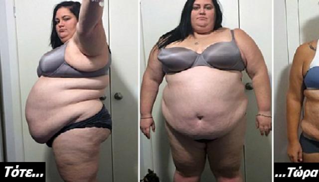Έτρωγε ΜΟΝΟ απέξω και είχε φτάσει τα 184 κιλά. Μόλις δείτε ΠΩΣ είναι σήμερα, θα Σοκαριστείτε!