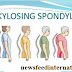 Ankylosing Spondylitis Symptoms and Treatments