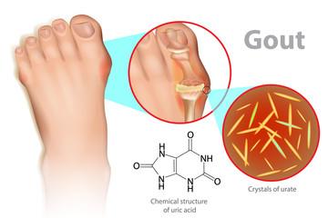 التعامل بوعي مع مرض النقرس Gout