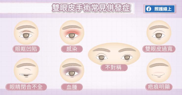 雙眼皮手術常見併發症